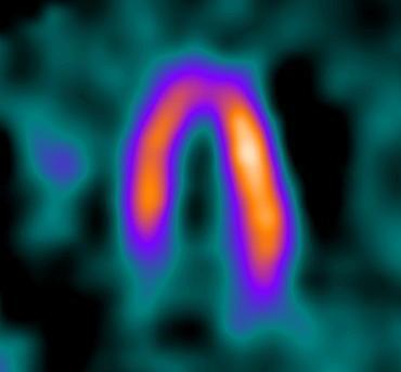 Nuclear Stress Test Utah Cardiology
